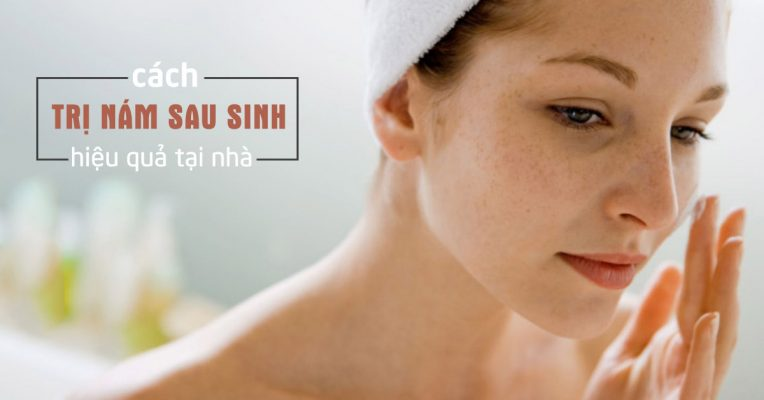 cách trị nám da mặt sau sinh, cách trị nám da sau sinh, cách chữa nám da sau sinh, cách trị nám da mặt sau khi sinh, cách điều trị nám da sau khi sinh, cách trị nám da sau sinh hiệu quả, cách chữa nám da mặt sau sinh, cách chữa nám da sau khi sinh, cách trị nám da cho phụ nữ sau sinh, cách trị nám da sau sinh tại nhà, cách chữa trị nám da sau sinh