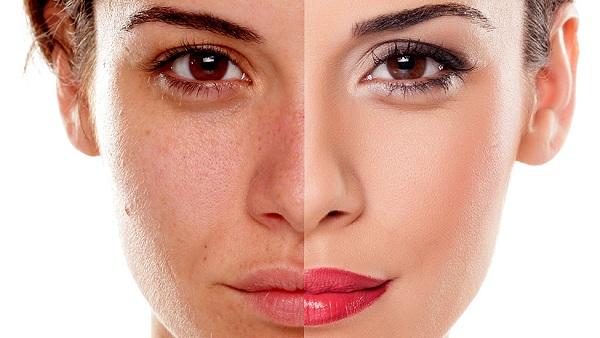Da khô sạm thì nên ăn gì? Các thực phẩm cải thiện làn da bạn chưa biết