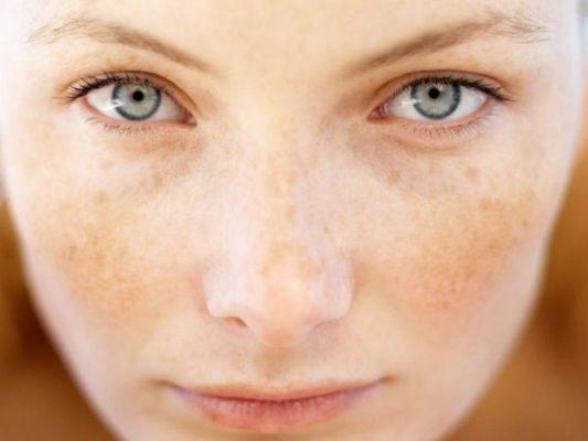Có nhiều nguyên nhân gây ra khô sạm trên da