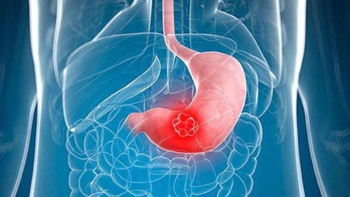 Ung thư dạ dày giai đoạn cuối gây nguy hiểm đến tính mạng