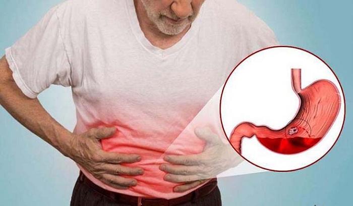 Tổng hợp các bệnh về dạ dày tuyệt đối không nên chủ quan