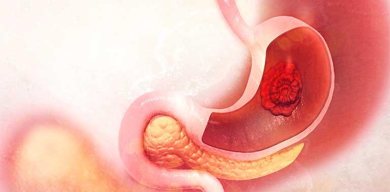 Chướng bụng, đầy hơi do bệnh viêm loét dạ dày gây ra