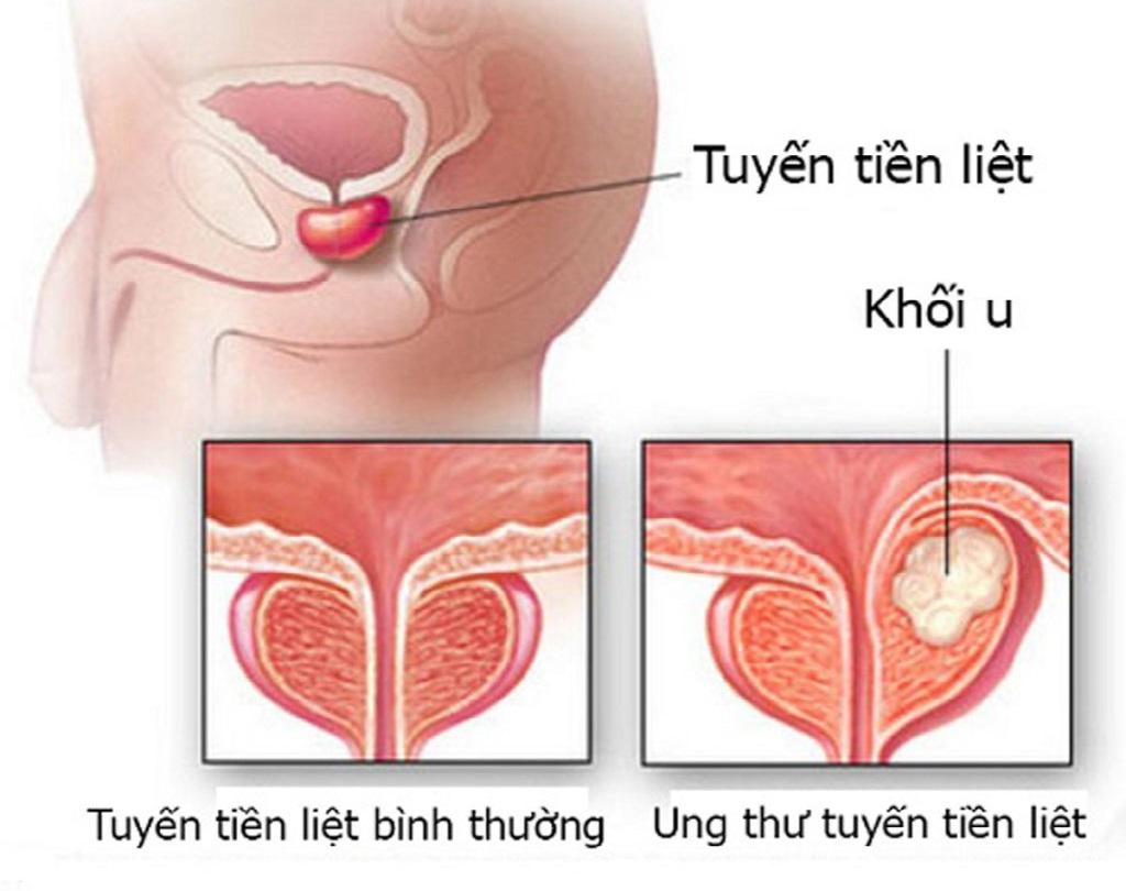 Hình ảnh mô tả u xơ tuyến tiền liệt ở nam giới