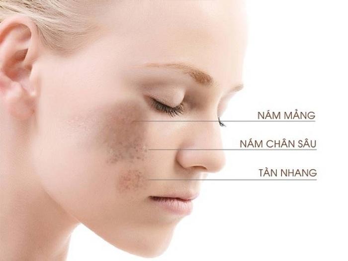 Những vết nám, tàn nhang trên da sẽ mờ đi đáng kể nhờ hoạt chất Nano Isoflavone