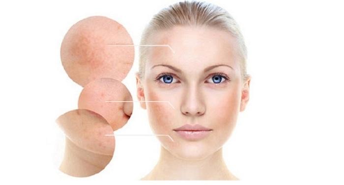Sử dụng sâm tố nữ collagen giúp mờ nám, tàn nhang