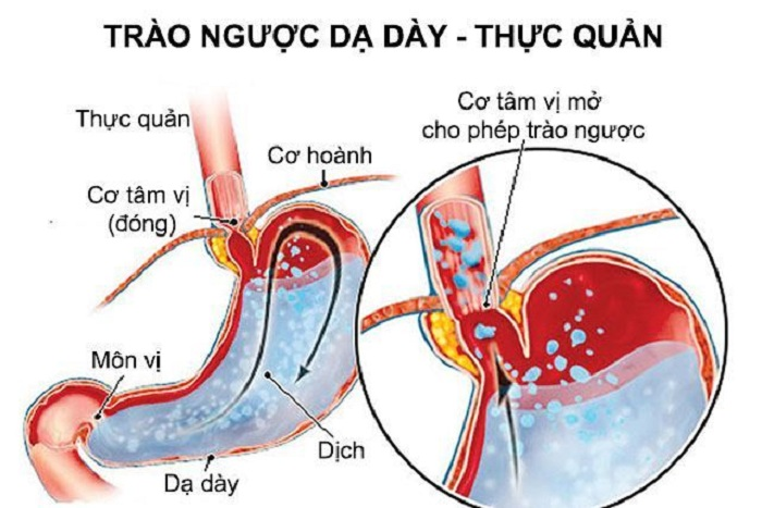 Suy cơ thăt dưới thực quản là một trong những nguyên nhân chính gây trào ngược dạ dày