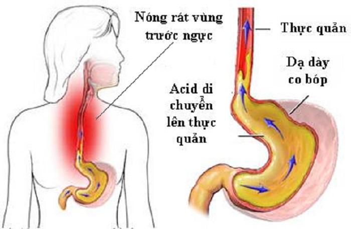 Những triệu chứng trào ngược dạ dày là gì?