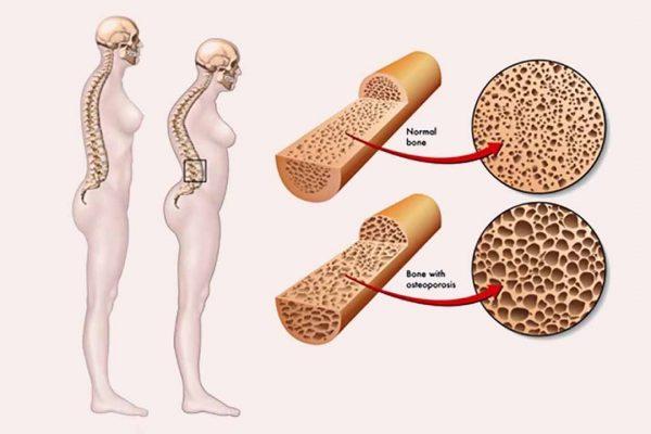 Bổ sung collagen giúp giữ được cấu trúc xương, xương chắc khỏe hơn
