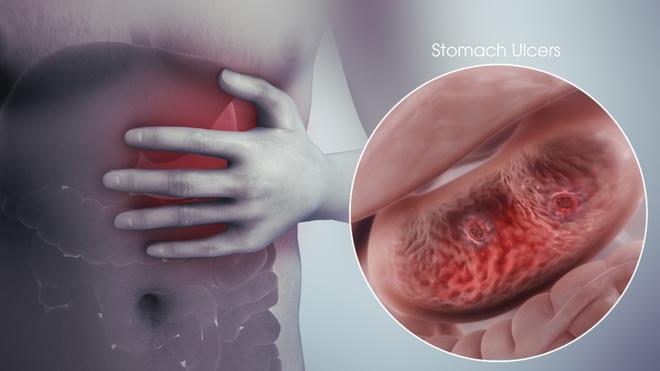 Viêm dạ dày tá tràng gây nên những tổn thương và viêm loét ở niêm mạc dạ dày